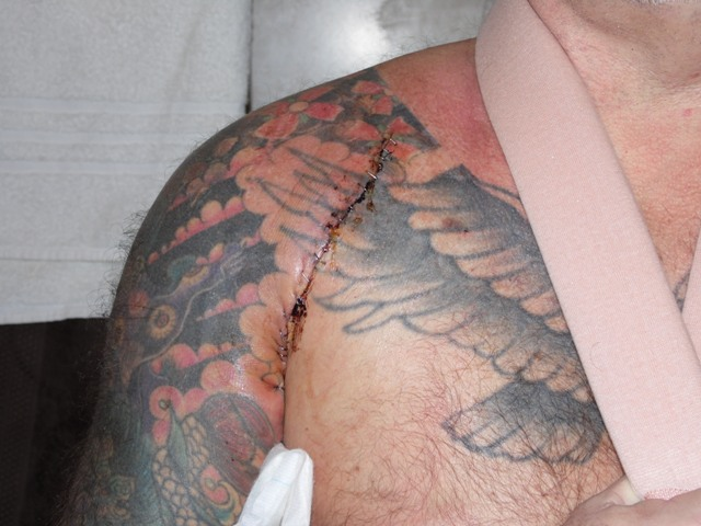 CHRIS'S ARM SHOWN AFTER ONE OF THE OPERATIONS